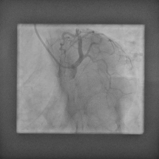 Normal coronaries 3