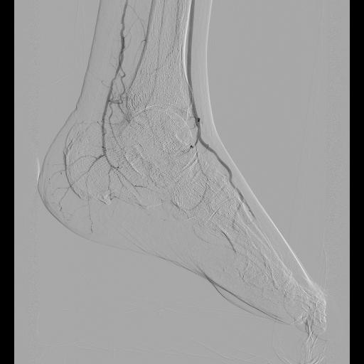 Peripheral plasty 1 pre 1