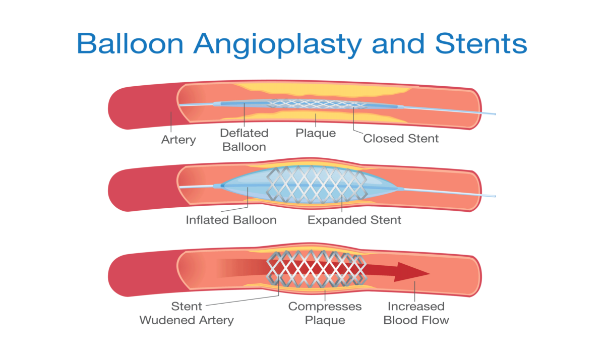 Balloon Angioplasty and Stents