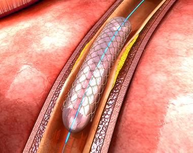 cci-coronary_angioplasty.jpg