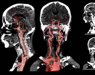 diagnosis-procedure-carotid_and_cerebral.jpg