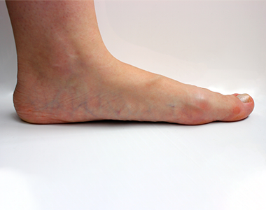 disease-condtions-critical_limb_ischemia.png