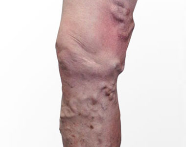 disease-condtions-varicose_veins.jpg