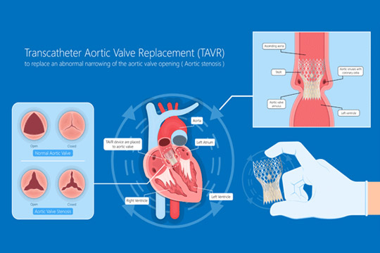 transcatheter-aortic-valve-replacement.jpg