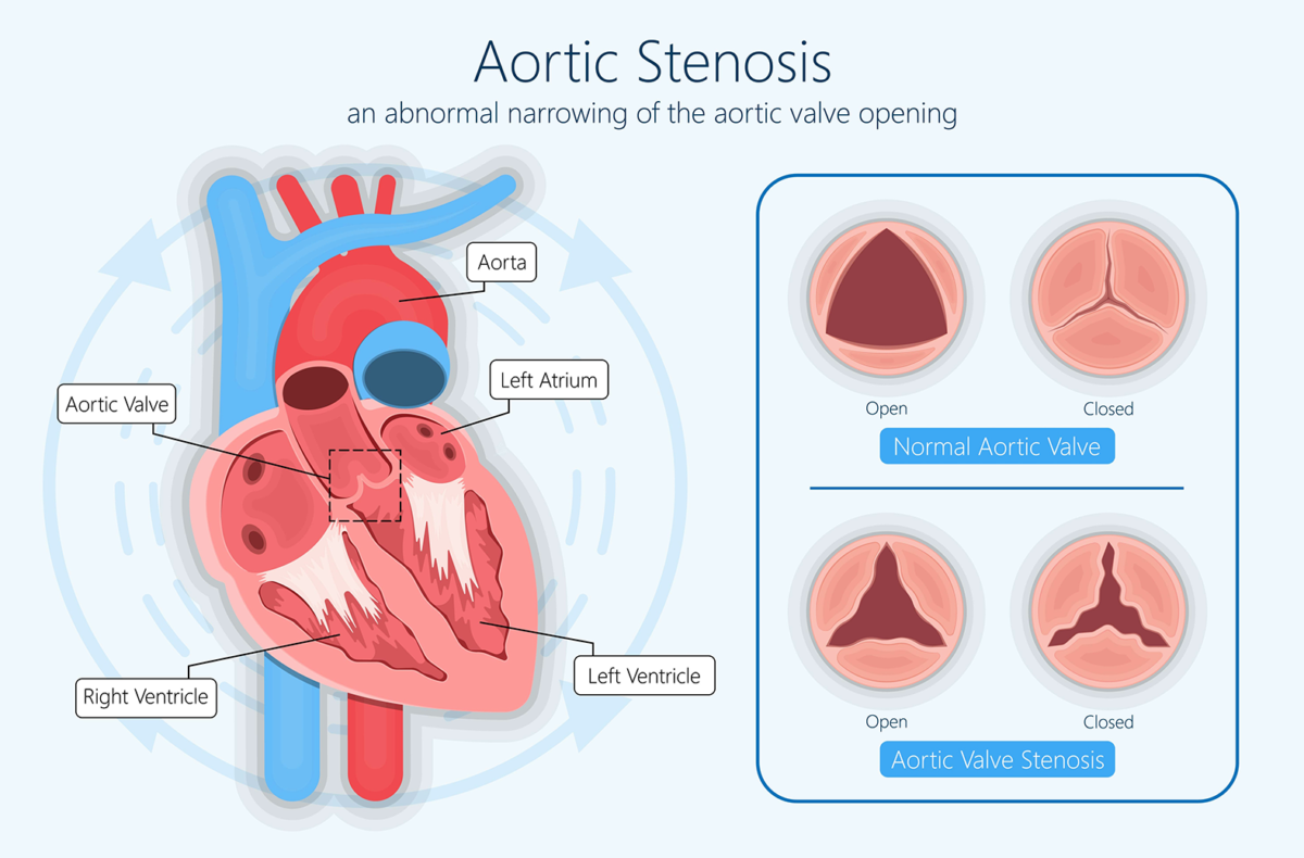 An abnormal narrowing of the aortic valve opening