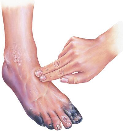 Chronic Limb Ischemia leg