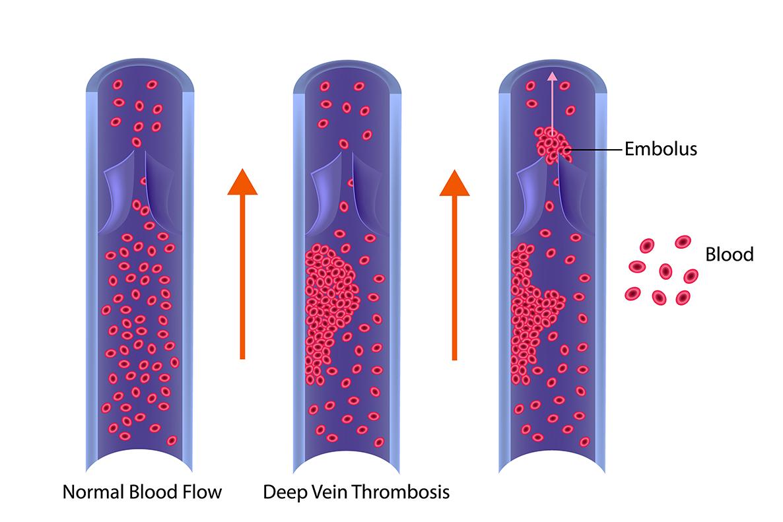 Deep Vein Thrombosis vs normal