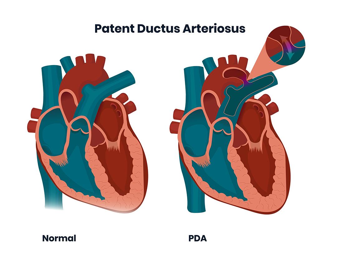 Patent Ducatus Arteriosus