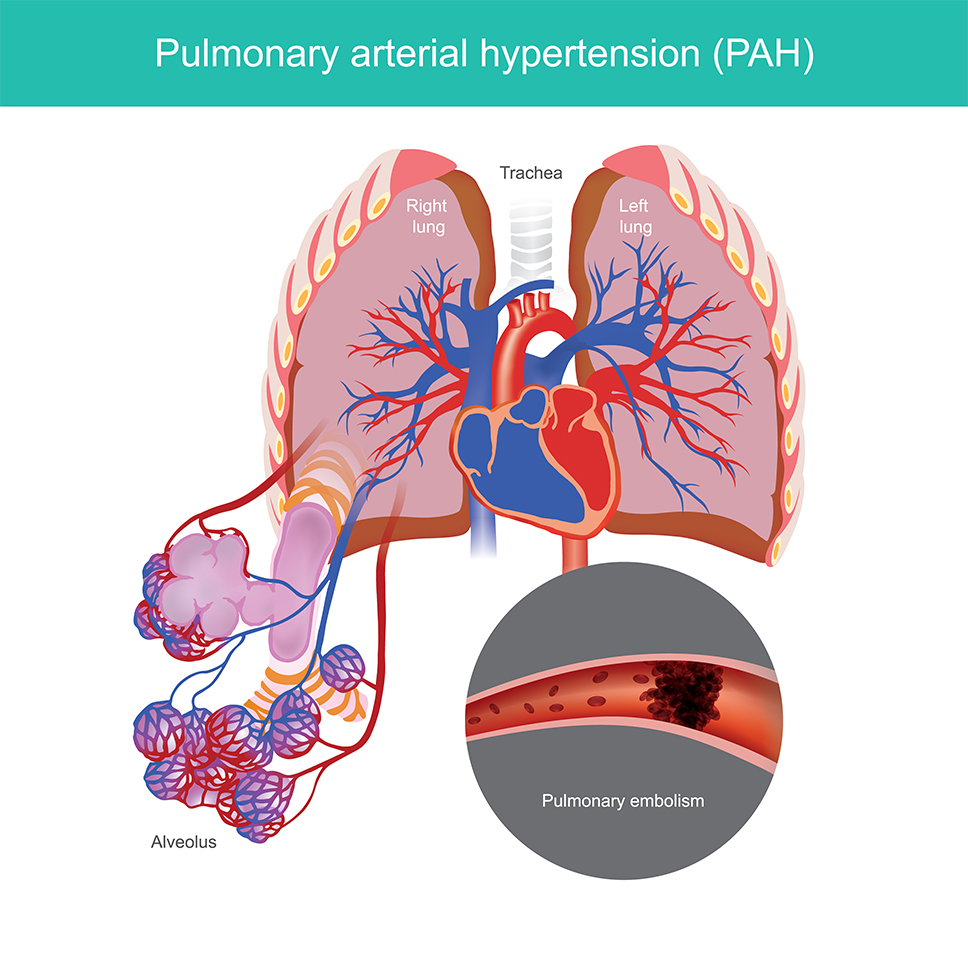 Pulmonary Artery Hypertension(PAH)