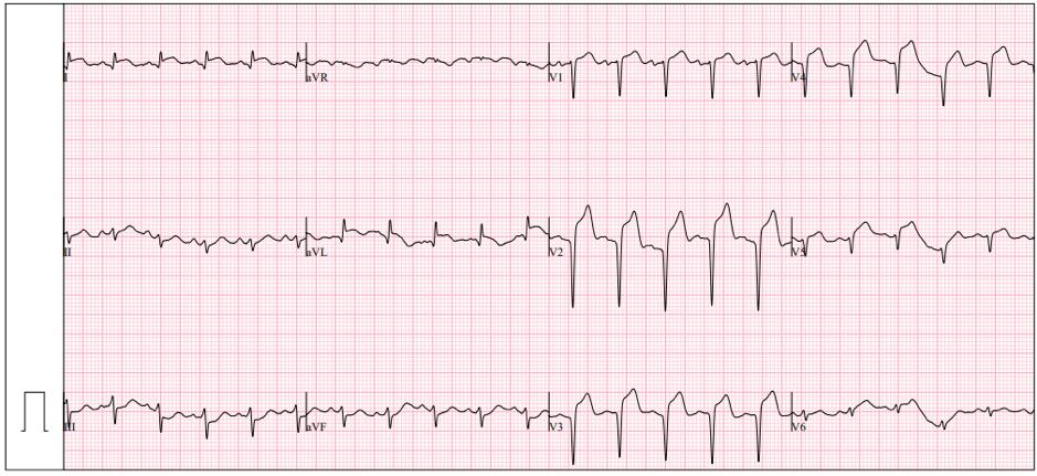 Trachycardia
