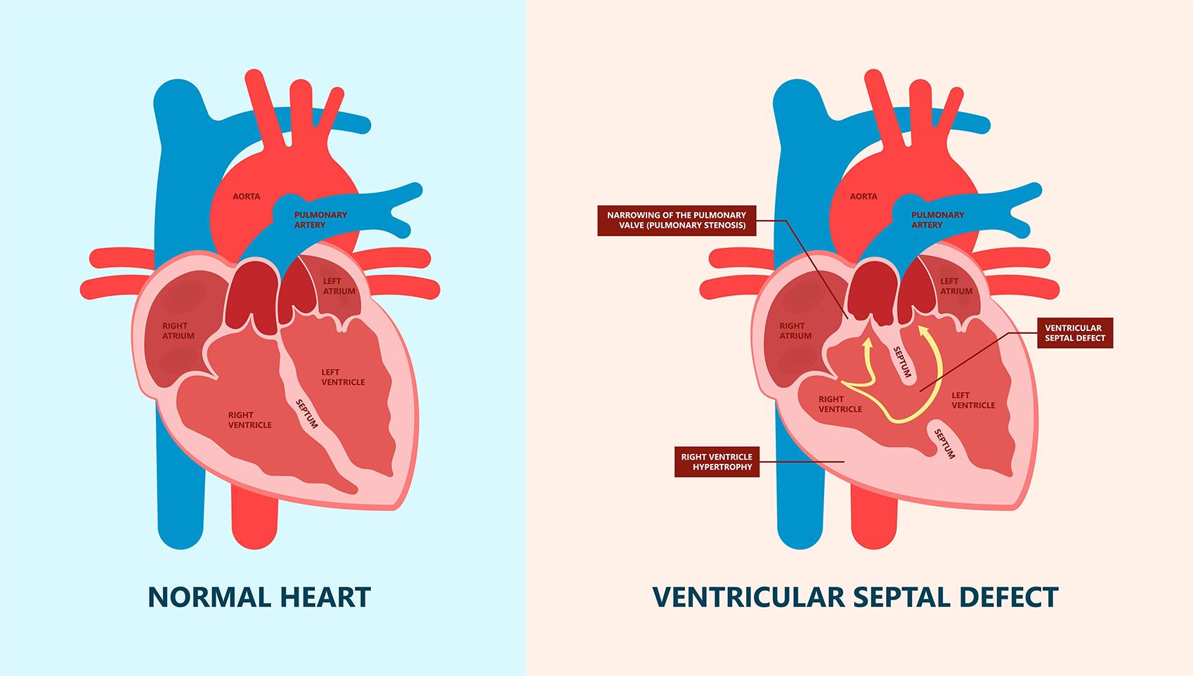 Ventricular Septal defect VSD   Dr C RAGHU Cardiologist