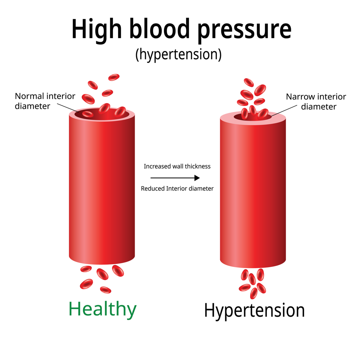 high blood pressure-hypertension