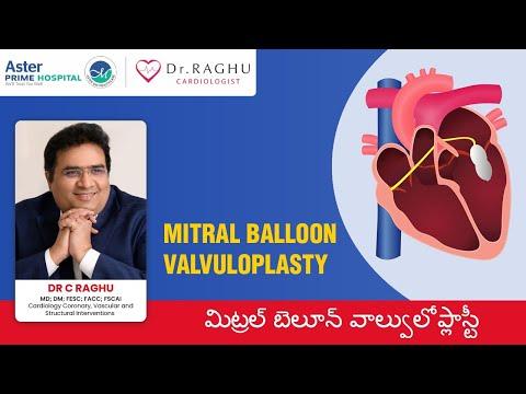 Mitral Stenosis | Mitral Balloon Valvuloplasty Treatment | Dr C Raghu