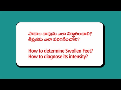 swelling of the feet | Footcare Swelling and or Swollen Feet and Ankles
