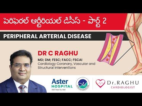 How to overcome peripheral arterial disease | Treatment & precautions