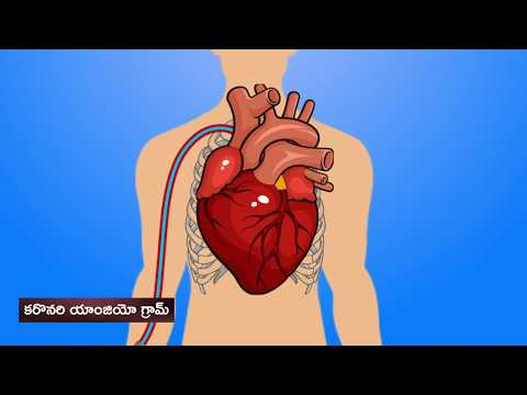 Angiogram | గుండె యాంజియోగ్రామ్ | What you need to know in Telugu