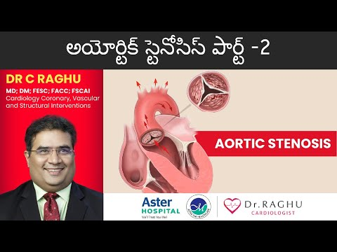 How to diagnose Aortic Stenosis | Treatments of Aortic Stenosis | Dr Raghu | Prime Hospital