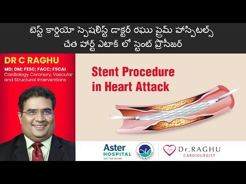 Stent treatment procedure | Healing heart the right way | Heart treatment