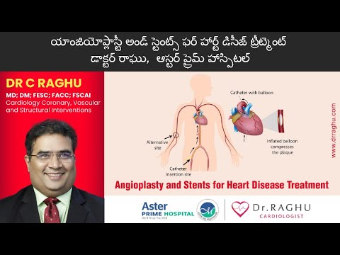 Angioplasty and Stent | Heart Care Treatment | Heart Problems