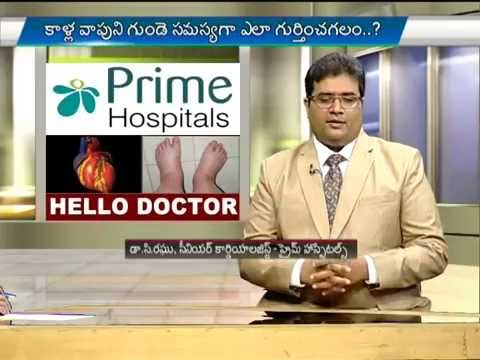 Swelling of the legs | Heart related problems with swelling of the legs | Swollen Ankles and Feet