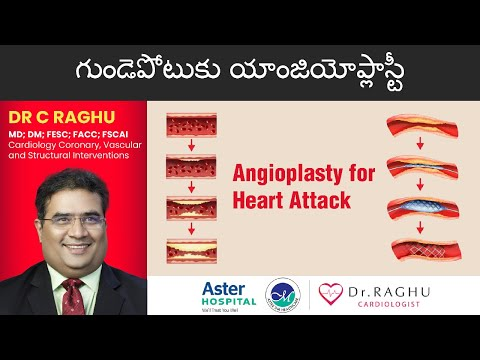 Heart Attack Treatment | Angioplasty for Heart Attack | Angioplasty Procedure