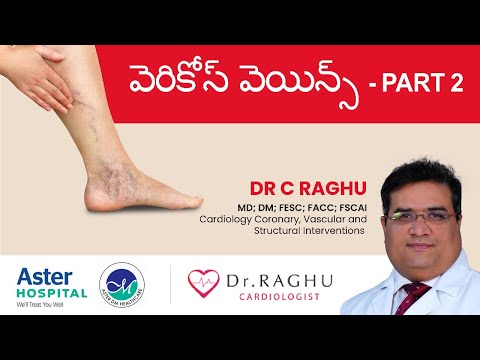 How to diagnose varicose veins | Non-surgical varicose treatment | Success rate