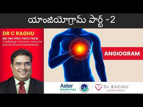 Coronary Angiogram Part 2 | యాంజియోగ్రామ్ - 2 | Heart surgery | A walkthrough of the process