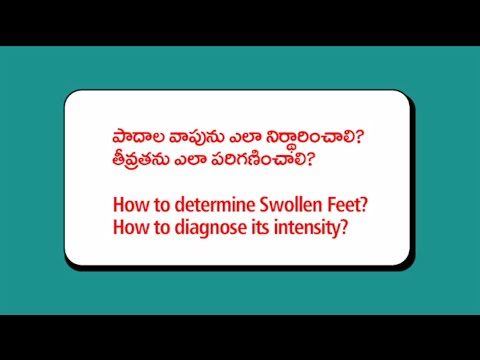 How to determine swollen Feet | How to diagnose its intensity | Heart problems with swollen feet