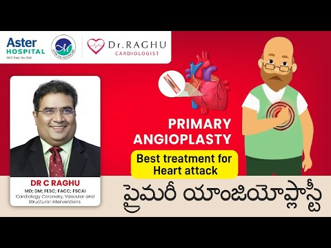 Primary Angioplasty| Best treatment for Heart attack| Dr Raghu| Aster Prime Hospital