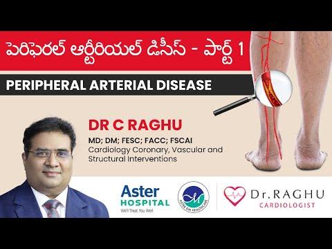What is Peripheral arterial disease | Symptoms & Treatment of Peripheral arterial disease