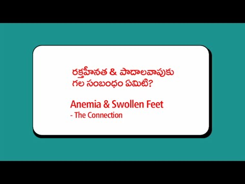 The Connection Between Anemia and Swollenfeet - by Dr.C.Raghu, Interventional Cardiologist