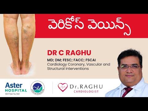 అనారోగ్య సిరలు రకాలు & లక్షణాలు| Varicose veins types & symptoms | Dr C Raghu