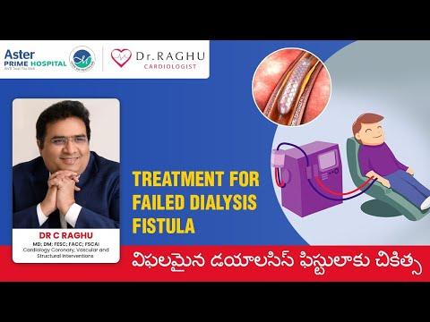 Treatment for failed dialysis fistula | Dialysis | AV Fistula | Dr C Raghu
