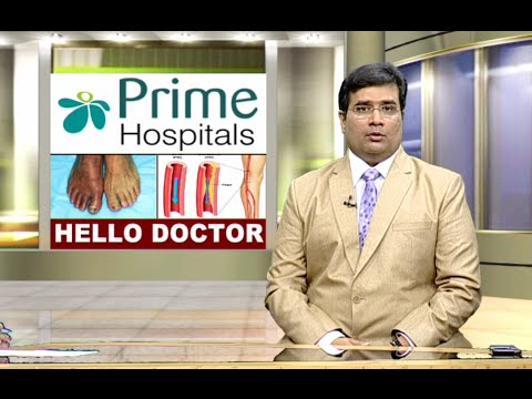 Treatment for peripheral arterial disease by Dr.Raghu-Interventional Cardiologist