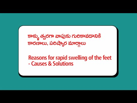 How to Reduce Swelling in the Feet | Causes and solutions for the swelling of the feet