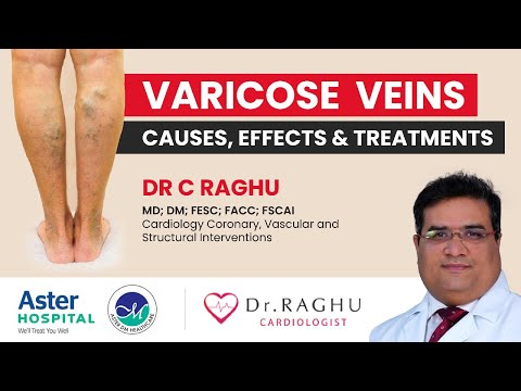 How to get rid of calf pain| Best treatment available for varicose veins| Dr C Raghu| Cardiologist